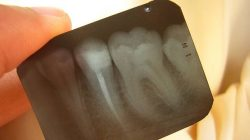 x ray tooth